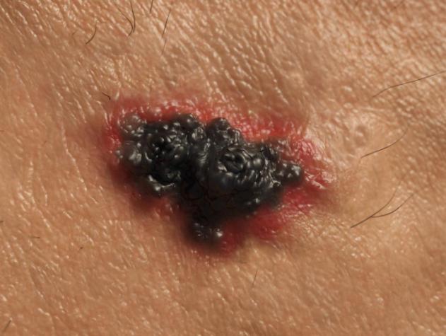 Opdivo可用于治疗黑色素瘤